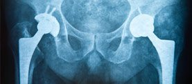 Hip Implant Recall Attorney